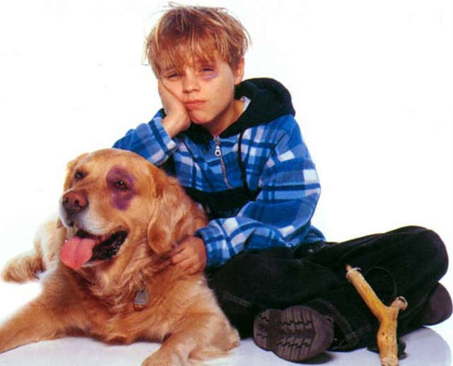 Boy And Dog Have Black Eyes
