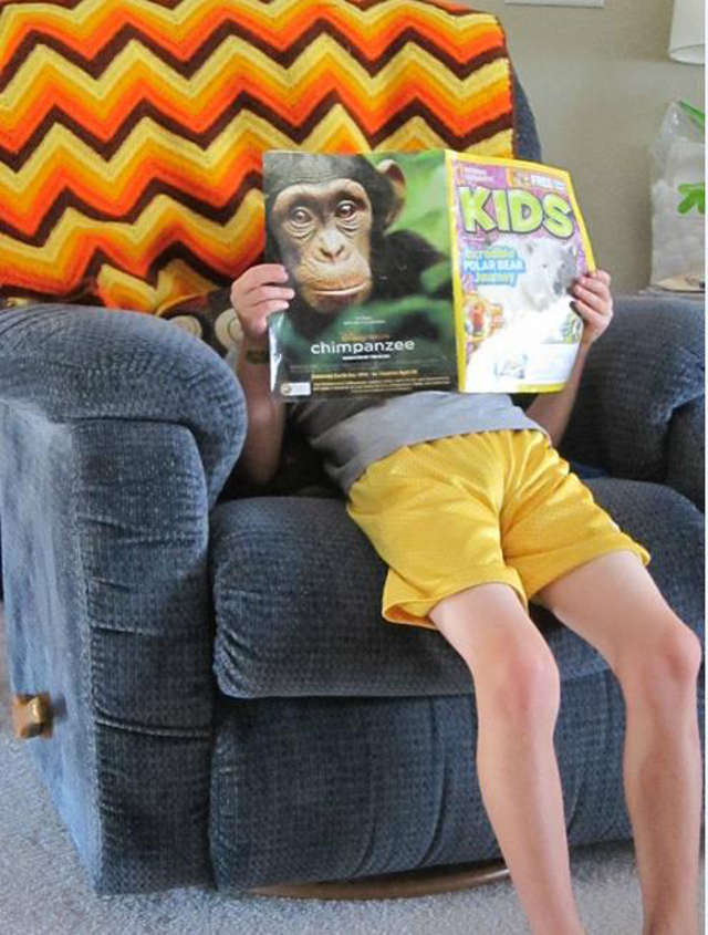 Boy With Monkey Face